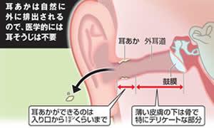 耳あかの重要な役割「耳の保湿、ゴミやホコリの吸収、バイ菌などを殺菌し、自然に排出される仕組みをしている」