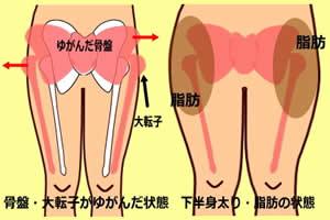 大転子とは「骨盤より下にある太ももの出っ張りの部分」