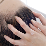 【おでこ&つむじ】薄毛やハゲの女はどうすれば?治った女子&女性の予防と解決方法「薄毛や分け目の若ハゲを食事とヘアケアで治す方法」