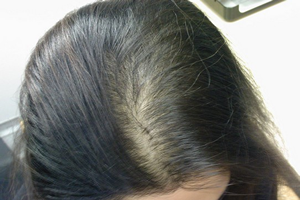 間違った髪の洗い方、長時間のドライヤー
