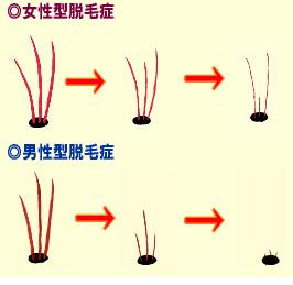男性と女性で薄毛、抜け毛の原因が違います。育毛剤はホルモンに合わせて使うべきです