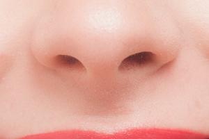 鼻のニキビ