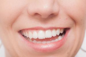 歯肉炎。歯と歯ぐきの間が、赤くはれる、歯磨きすると出血