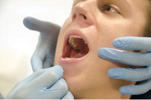 歯槽膿漏。歯ぐきが激しく出血、歯茎が痛い
